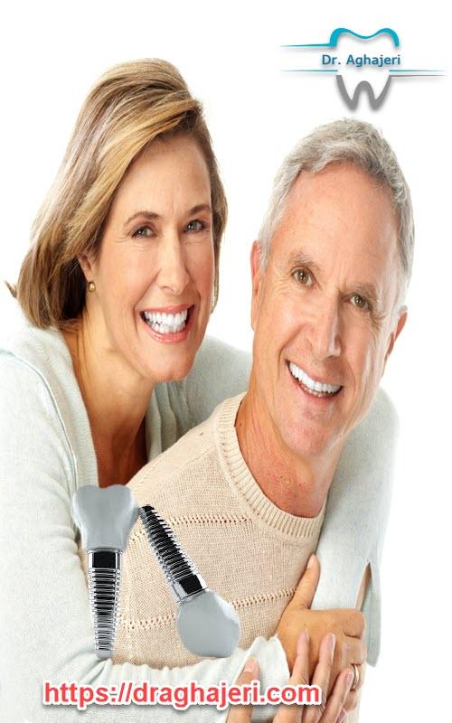 عمر ایمپلنت دندان