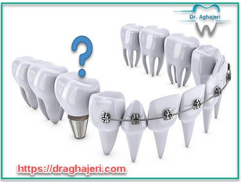 کاشت دندان قبل از ارتودنسی
