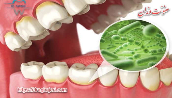 علل ایجاد عفونت دندان
