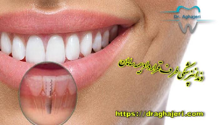 دندانپزشکی طرف قرارداد بیمه سامان