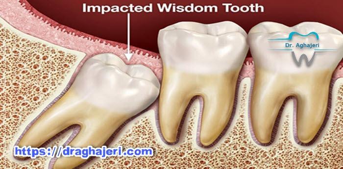 کشیدن دندان عقل بدون جراحی