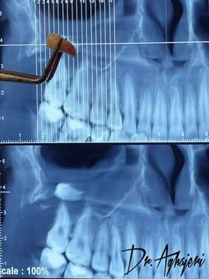 دندان عقل نهفته در سینوس