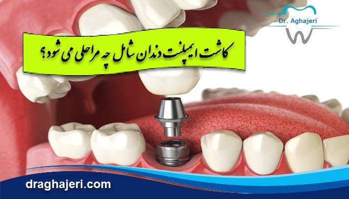 کاشت ایمپلنت دندان شامل چه مراحلی می شود؟