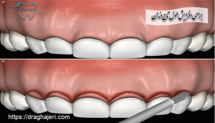 جراحی افزایش طول تاج دندان چگونه انجام می شود ؟