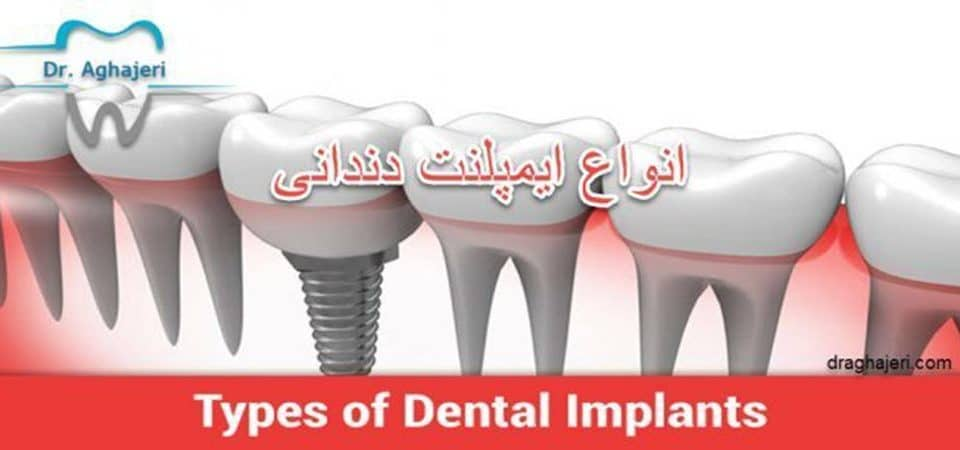انواع ایمپلنت دندانی