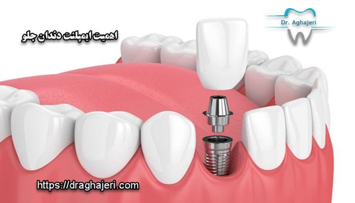 اهمیت ایمپلنت دندان جلو در چیست؟