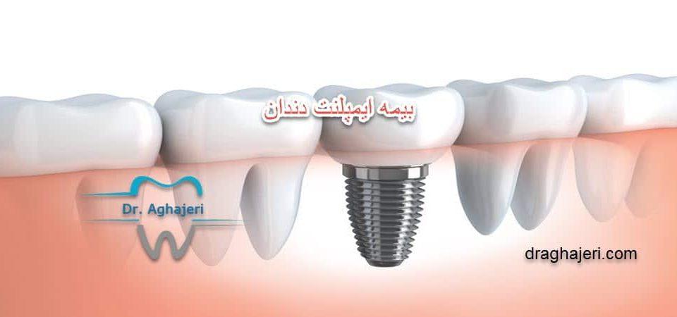 بیمه ایمپلنت دندان