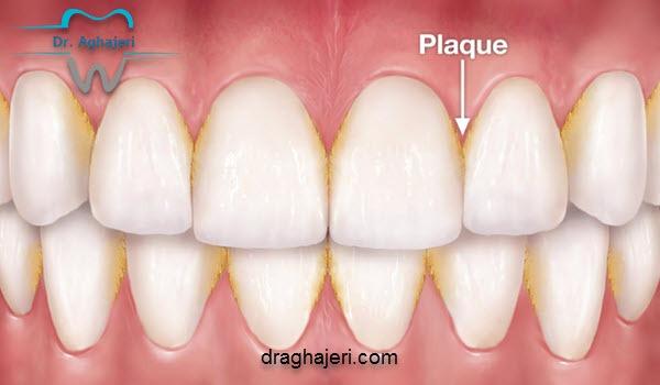 روش های جرم گیری دندان و انواع جرم دندانی