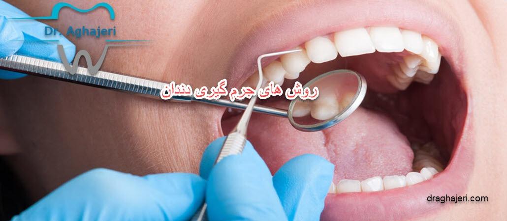 روش های جرم گیری دندان