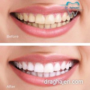 بلیچینگ دندان خانگی