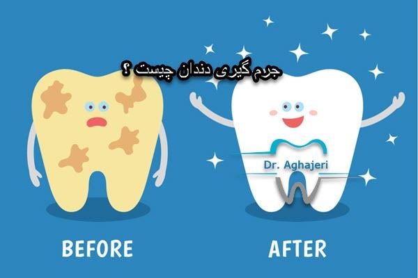 جرم گیری دندان چیست ؟
