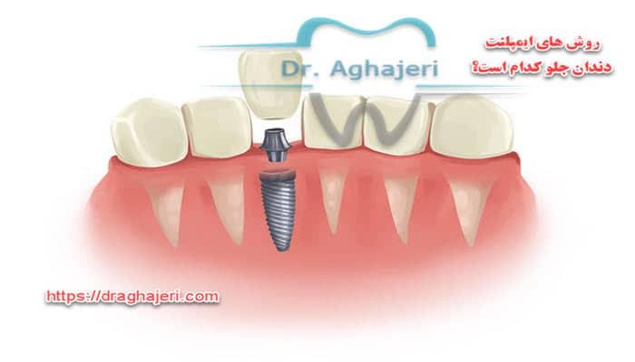 روش های ایمپلنت دندان جلو کدام است؟