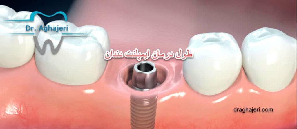 طول درمان ایمپلنت دندان