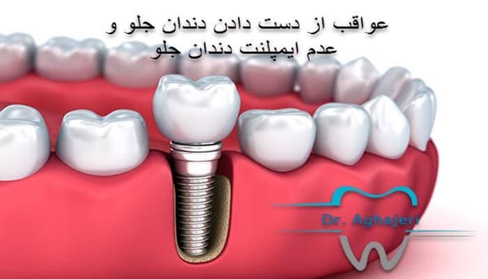 عواقب از دست دادن دندان جلو و عدم ایمپلنت دندان جلو
