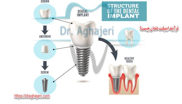 فرآیند ایمپلنت دندان چیست؟