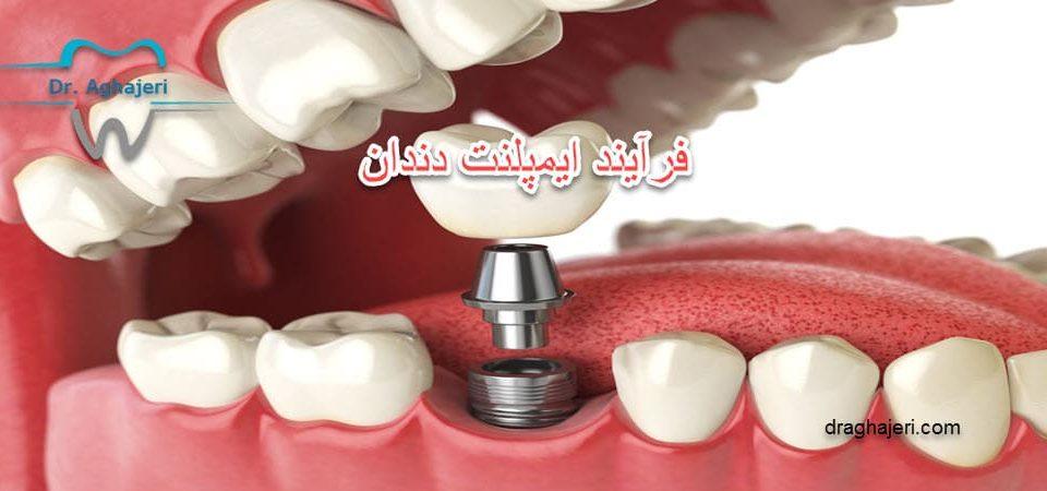 فرآیند ایمپلنت دندان