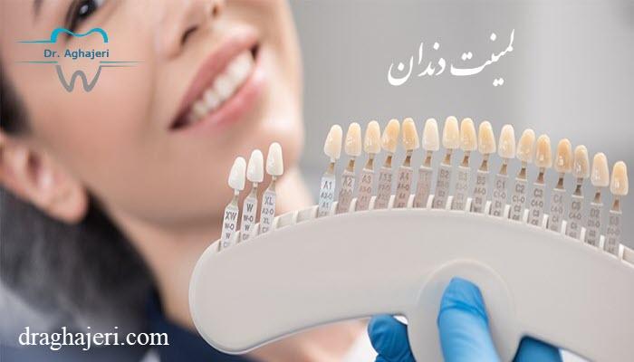 مزیت لمینت دندان
