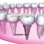 نکات ایمپلنت دندان