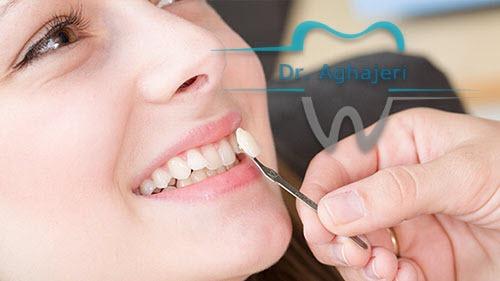 تفاوت لمینت وکامپوزیت دندان در چیست؟