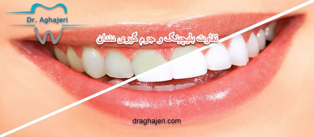 تفاوت بلیچینگ و جرم گیری دندان