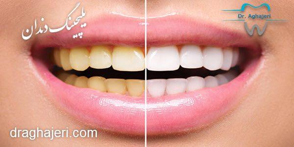 راهکارهای خانگی برای سفید کردن دندان