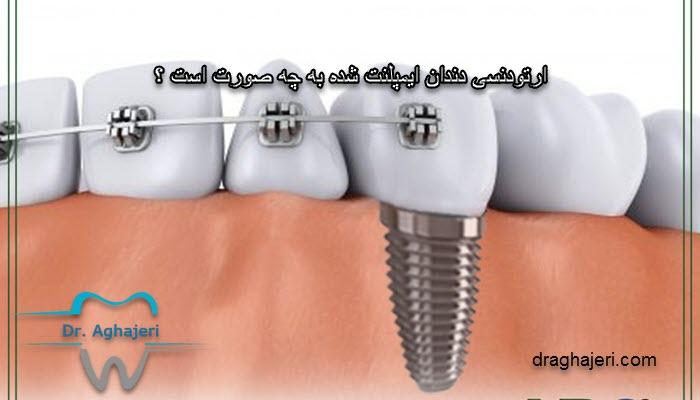 ارتودنسی دندان ایمپلنت شده به چه صورت است ؟