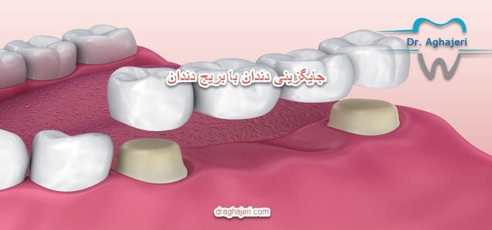 جایگزینی دندان با بریج دندان