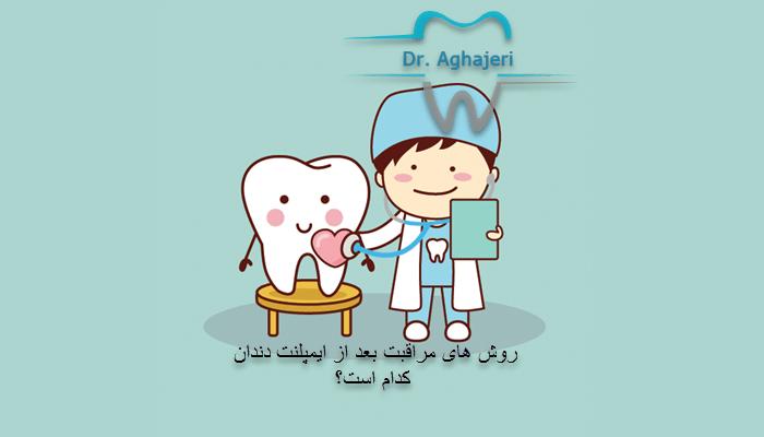روش های مراقبت بعد از ایمپلنت دندان کدام است؟