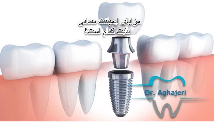 مزایای ایمپلنت دندانی ثابت کدام است؟