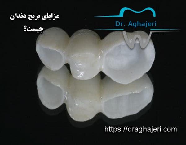 مزایای بریج دندان چیست؟