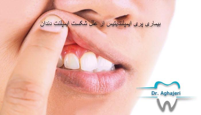 بیماری پری ایمپلنتایتیس از علل شکست ایمپلنت دندان