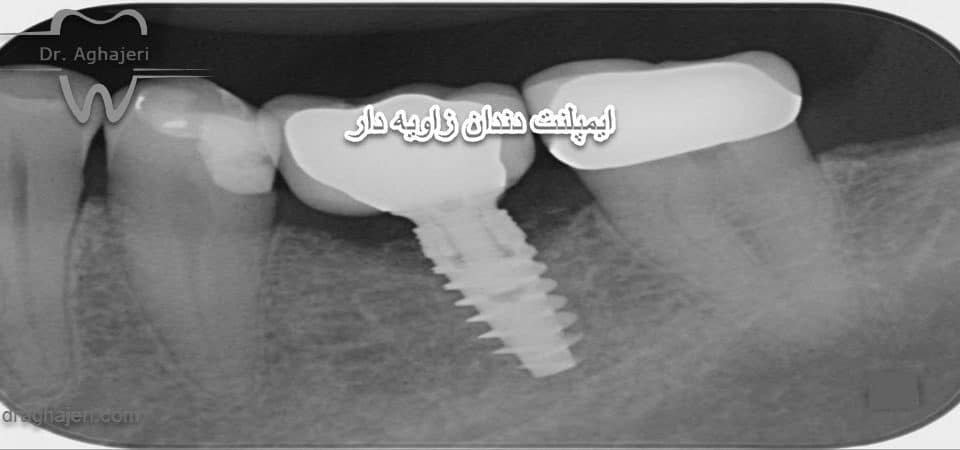 ایمپلنت دندان زاویه دار
