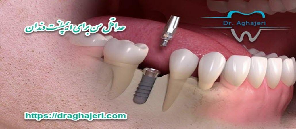 حداقل سن برای ایمپلنت دندان