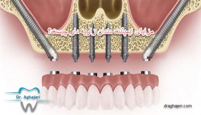 مزایای ایمپلنت دندان زاویه دار چیست؟