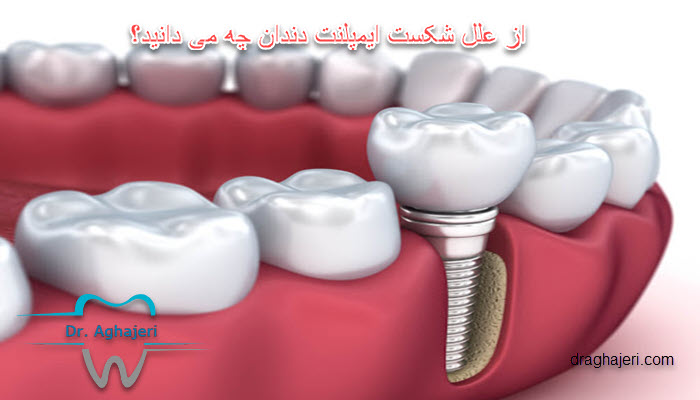 از علل شکست ایمپلنت دندان چه می دانید؟