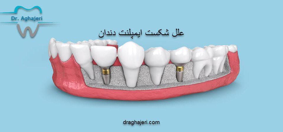علل شکست ایمپلنت دندان