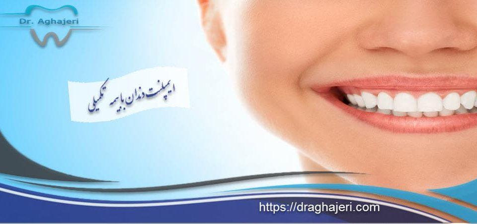 ایمپلنت دندان با بیمه تکمیلی