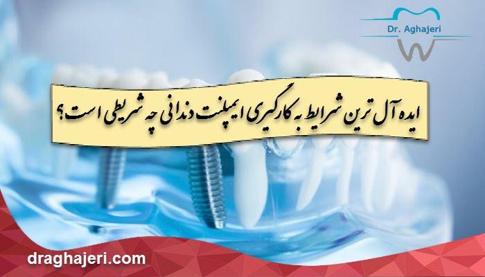 ایده آل ترین شرایط به کارگیری ایمپلنت دندانی چه شریطی است؟