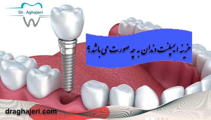 هزینه ایمپلنت دندان به چه صورت می باشد؟