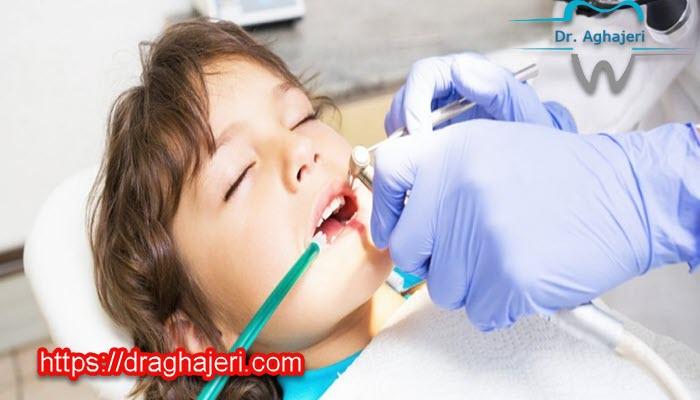 انواع داروی آرام بخش دندانپزشکی کودکان