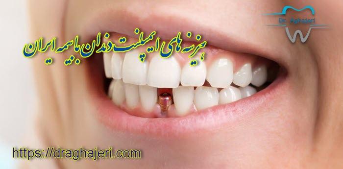 هزینه های ایمپلنت دندان با بیمه ایران