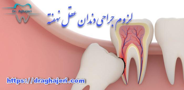 لزوم جراحی دندان عقل نهفته