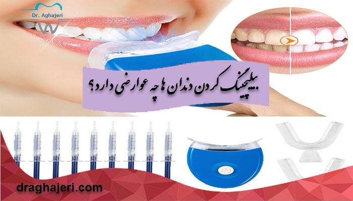 بیلیچینگ کردن دندان ها چه عوارضی دارد؟