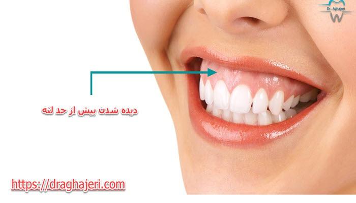 تفاوت اصلاح طرح لبخند باخط خنده چیست؟