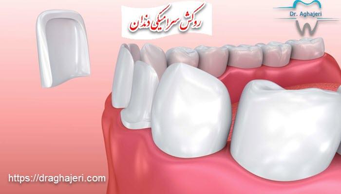 ویژگی روکش تمام سرامیکی دندان چیست؟