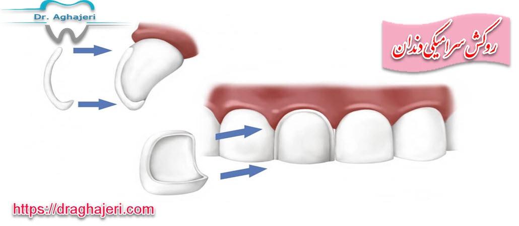 روکش سرامیکی دندان
