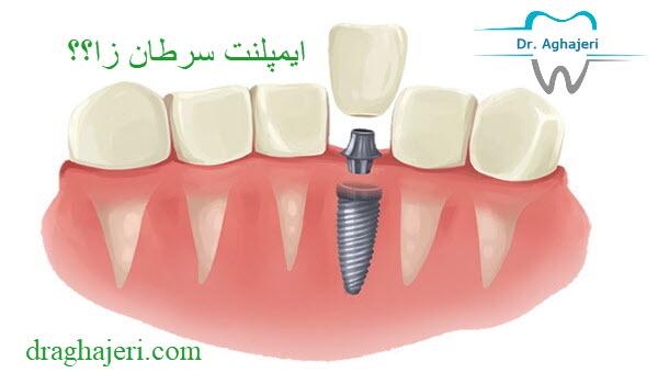 ایمپلنت دندان سرطان زا است؟