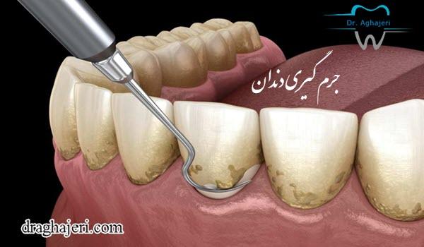 گیری دندان1