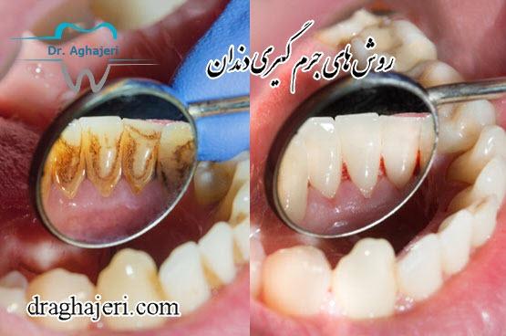 های جرم گیری دندان توسط دندانپزشک