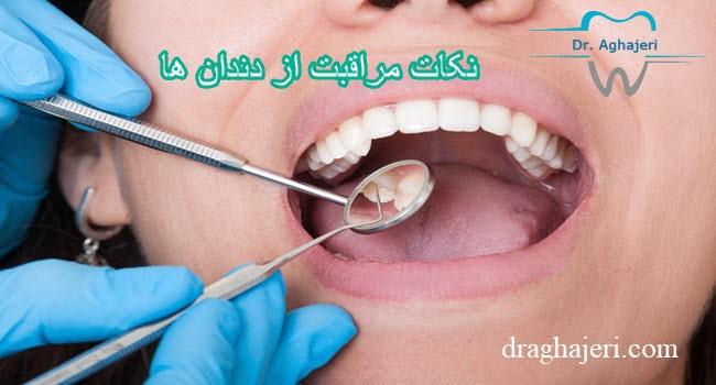 مراقبت از دندان ها min